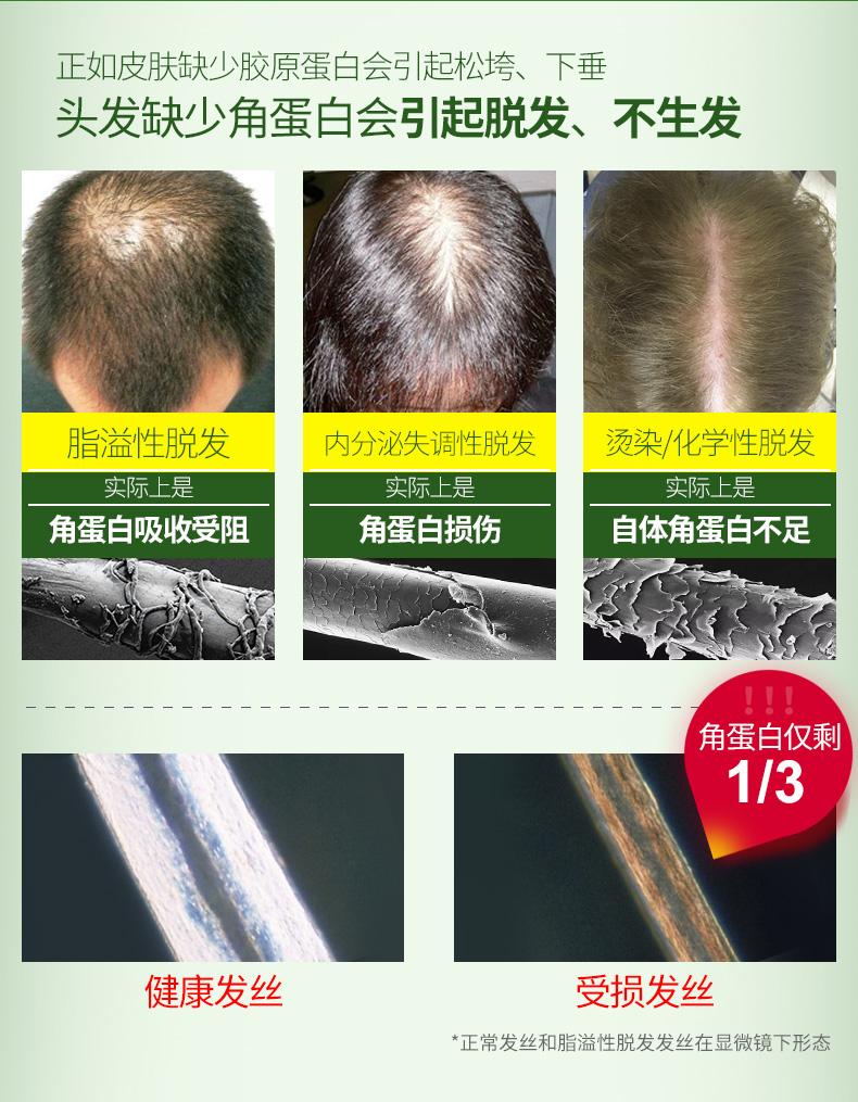法国biocyte生发安瓶角蛋白活化真皮育发防脱修复受损发质正品 产品中心 第3张