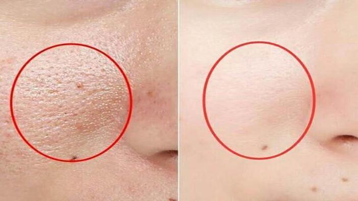 脸上长螨虫别慌!睡前抹点它就能提升肤色