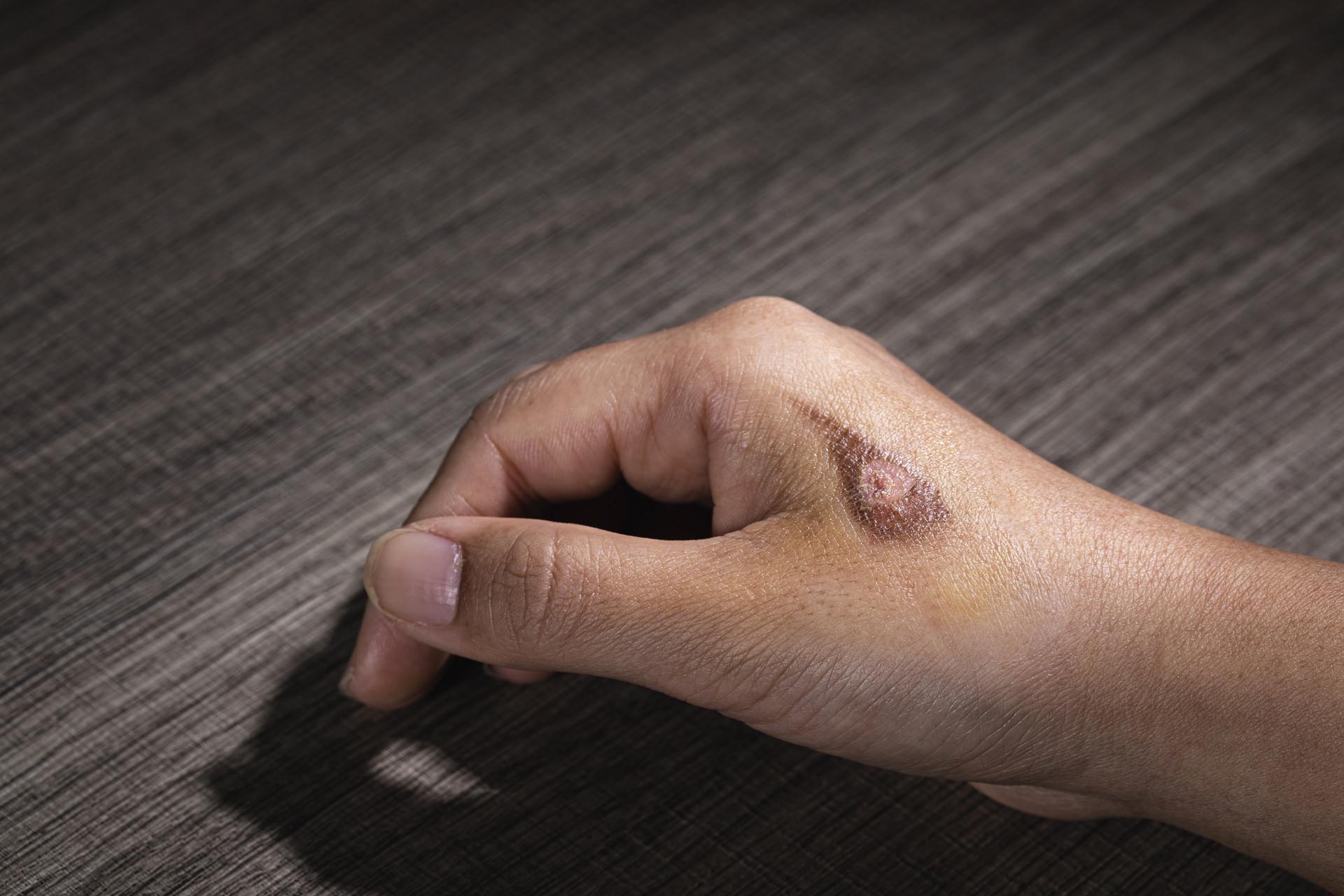 如何才能让身体不留疤痕?