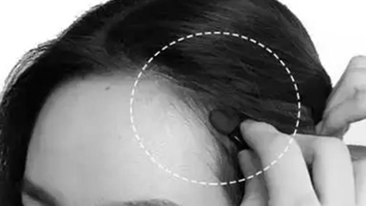 脱发、发际线后移的原因!女生多是第4种