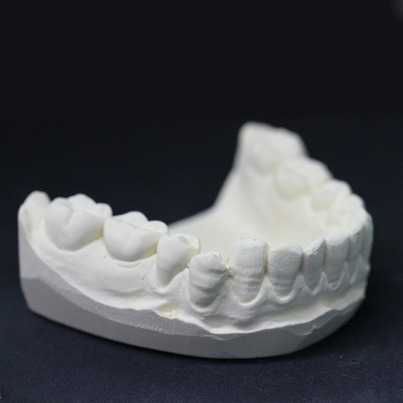 Gypsum dental mold material kit modulus powder making dental model do  dental restorers braces impression powder