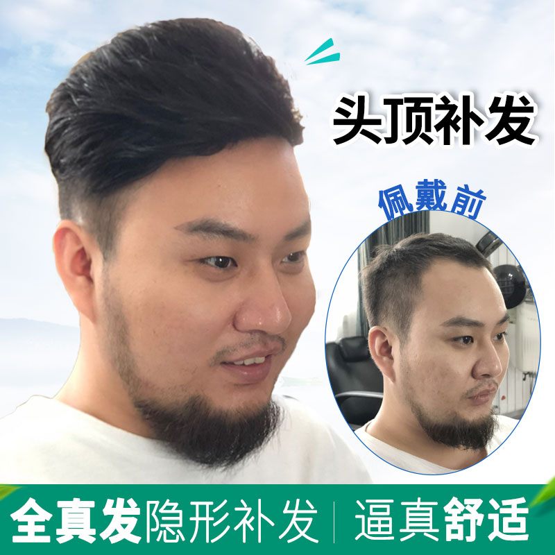 Usd 6814 Weave Hair Replacement For Men Forehead Replacement