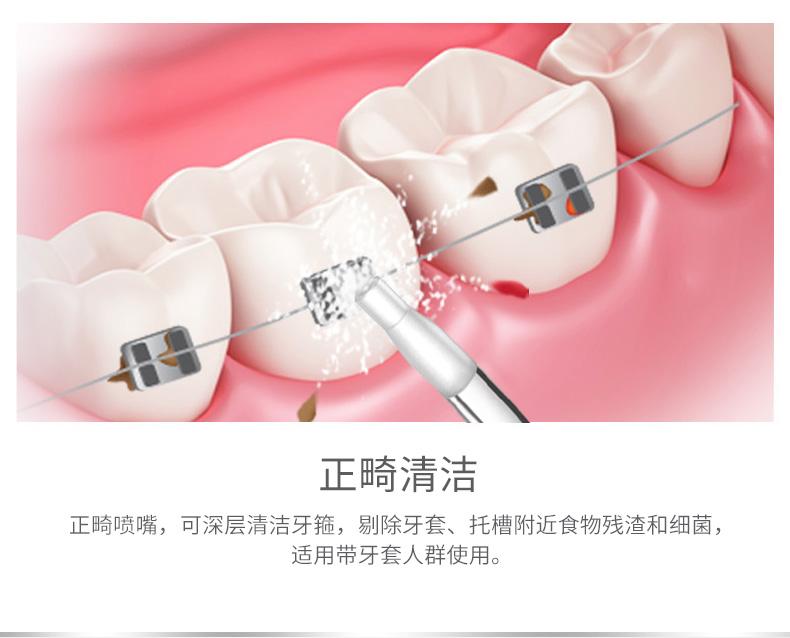 零酸痛去牙石,原价189 便携家用电动洗牙器59元包邮新低价!