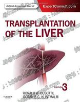 Transplantation of the Liver Expert Consult Online and Prin