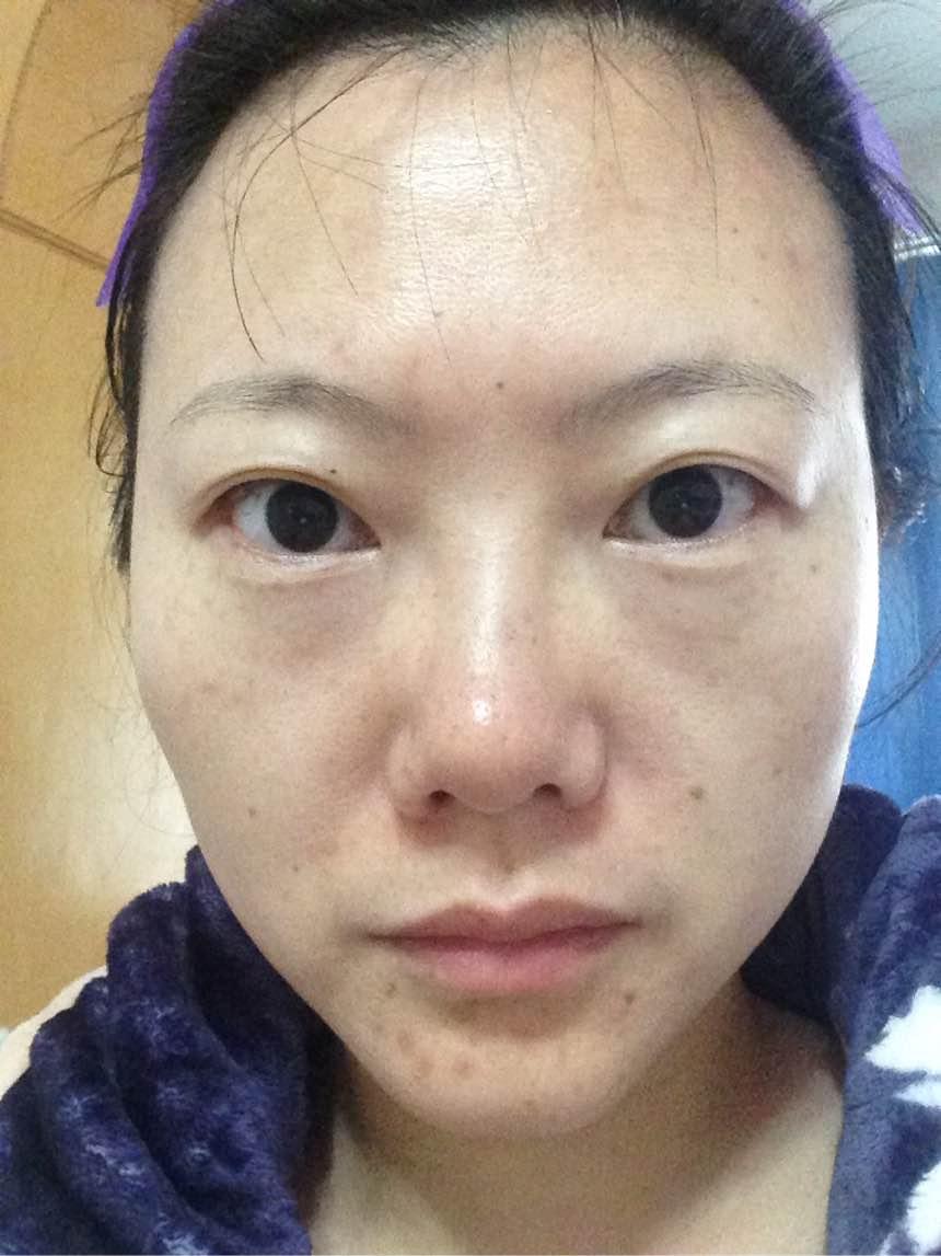 新七白嫩肤面膜