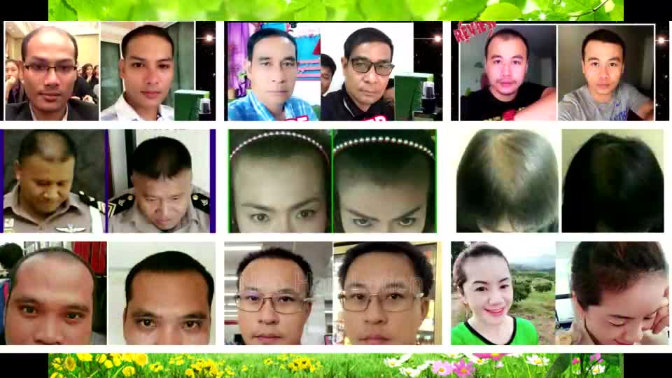 Neo Hair Lotion Hair Transplant and Hair Loss Treatment GMP Products form Thailand Green Wealth Center