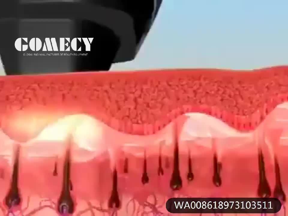 GOMECY Hair Removal Machine Alma sopranoice platinum titanium Diode Laser 755/808/1064nm Alexandrite Laser