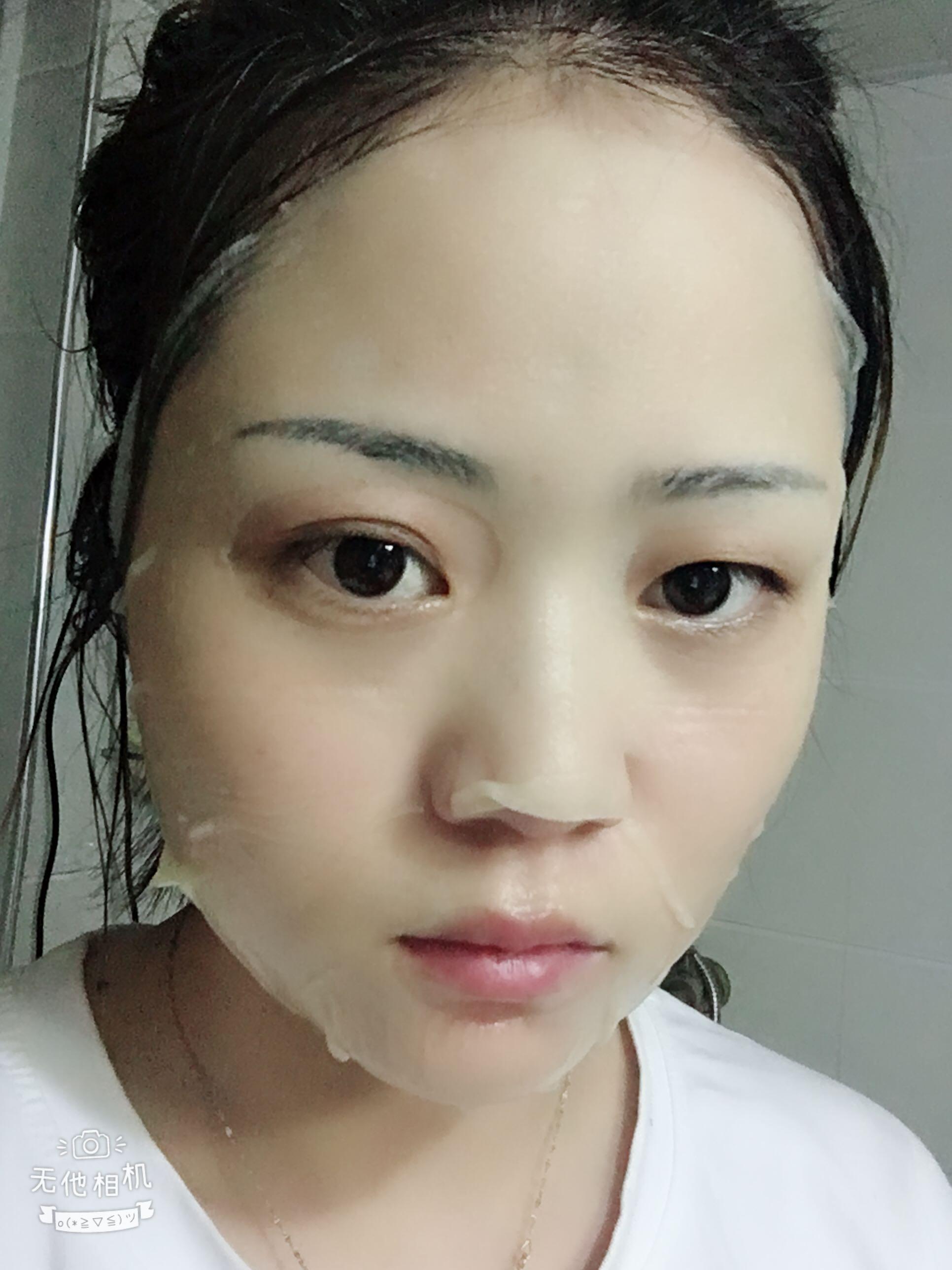 用kym冷热吸黑头神器吸出很多油脂,收缩毛孔,堪比去美容院做一次小气泡