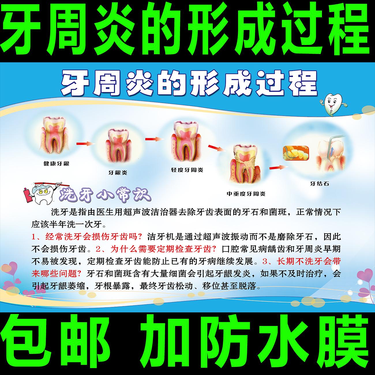 海报口腔科广告门诊过程宣传画挂图牙周炎的形成牙科诊所知识