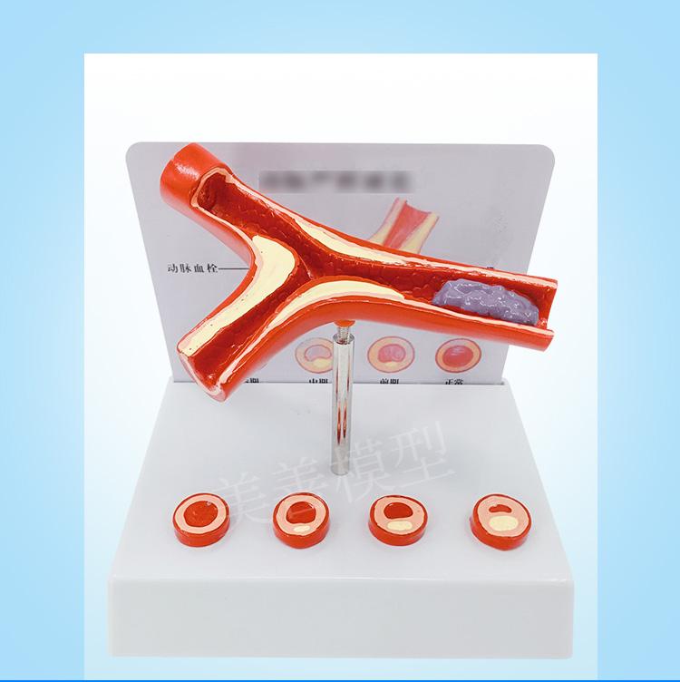 血栓教具教学医用人体模型血管循环系统静脉动脉血栓模型医患模型