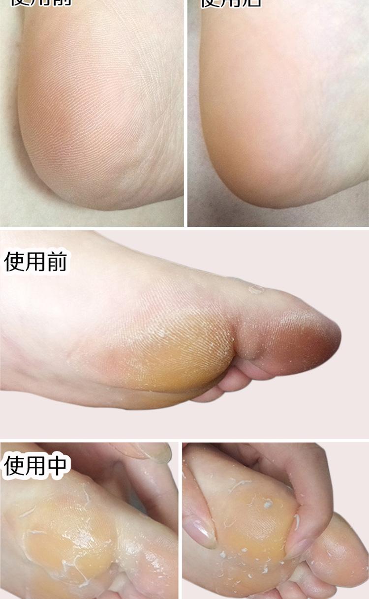 足部去角质喷雾手胳膊肘膝腿美足护理去死皮神器脚底脚皮磨砂喷雾详细照片