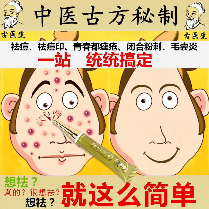 男女士祛痘产品去痘印祛除痤凹洞去青春痘毛囊炎去粉刺黑头祛痘膏