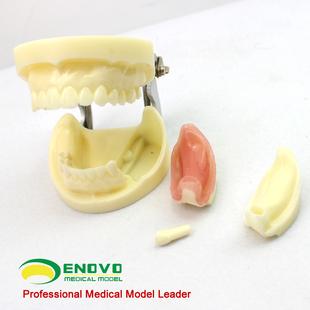 口腔模型口腔外科学教学模型牙颌牙医齿科种植体模型