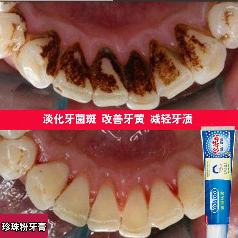 优妥珍珠粉牙膏牙白人更美洁白亮白牙齿不伤牙龈唇红齿白抖音同款