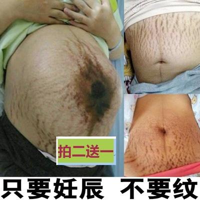 豹纹妈妈祛除去妊娠纹修复霜产后生长肥胖纹大腿产前孕妇消除壬辰