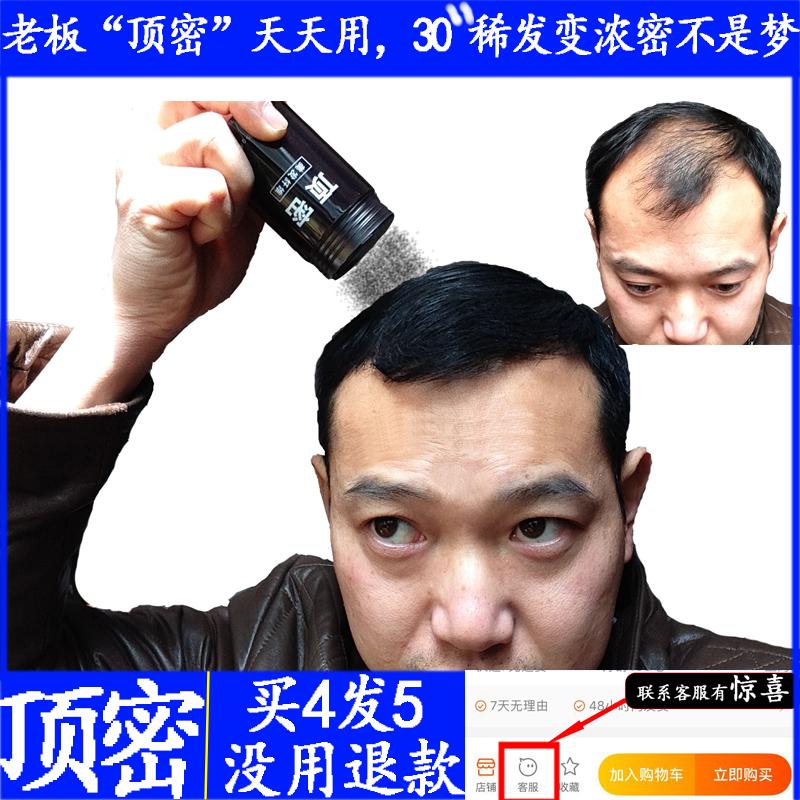 顶密  增发纤维头发纤维粉假发男女脱发际粉浓密发补发宝遮盖稀疏
