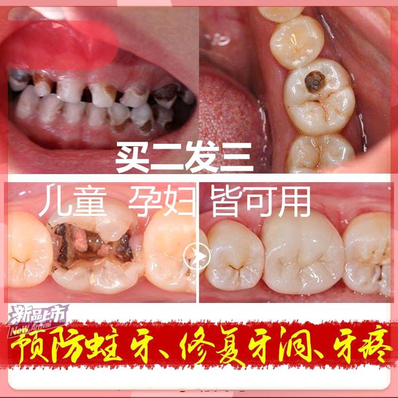 清火肿痛蛀虫预防牙洞家庭牙齿孕妇防蛀牙牙膏龋齿修复牙粉小学生