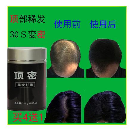 顶密增发纤维式假发加定型水男女快速美发粉浓密发补发宝头发稀发