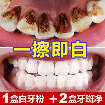 云南本草牙齿美白洗牙洁牙粉非速效去黄牙牙渍垢结石非神器白牙素