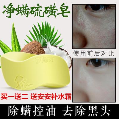 硫磺皂祛痘除螨控油去黑头去背上痘痘杀菌止痒男女洗脸香皂手工皂