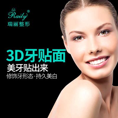 杭州瑞丽整形医院 3D超薄瓷贴面 高端贴片 原装正品