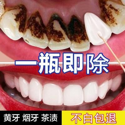 黑色小苏打牙齿美白凝胶去烟渍冷苏打抖音速效快速的黄牙变白洗