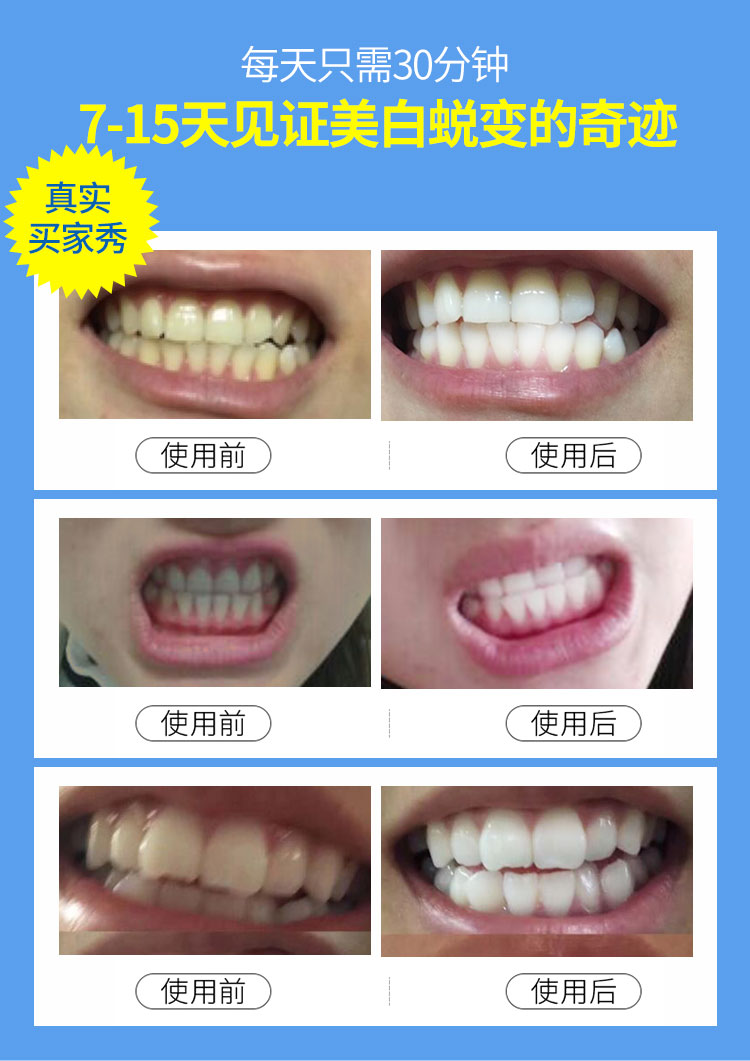 可授权碧缇福美牙仪官网正品凝胶冷光美白牙齿去黄牙渍洗牙洁牙器