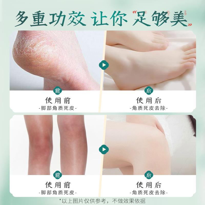 素萃足部去角质去脚老茧角质霜保湿补水脚部护理足部磨砂膏脚膜女