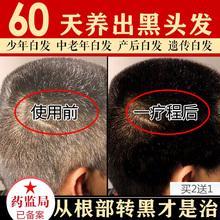 钻姿何首乌少年白发变黑发治根正品乌发植物洗发水黑发药白发克星