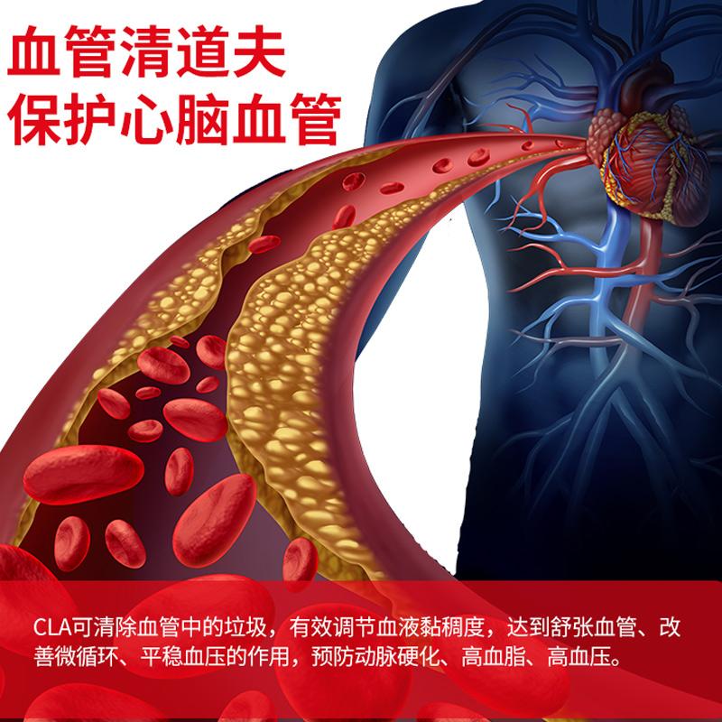 诺特兰德cla共轭亚油酸绿茶肉碱软胶囊分解内脏脂肪减肚子120粒